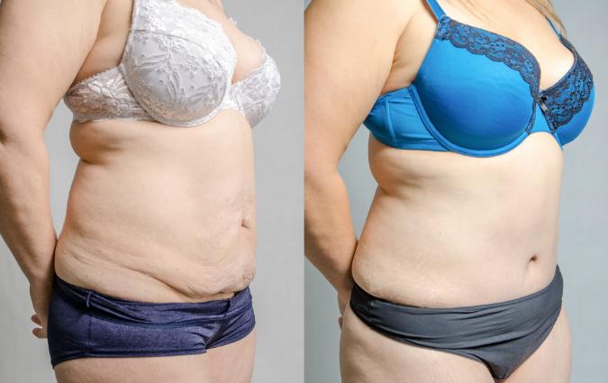 prima e dopo un intervento di liposuzione