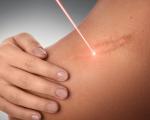 la laserterapia può curare i cheloidi